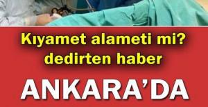 Dünyada 200 binde bir görülüyor Ankara'da doğdular.