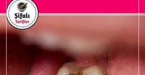40 Yıl Düşünseniz Aklınıza Gelmez Çürük Dişleri Eski Haline Getiriyormuş